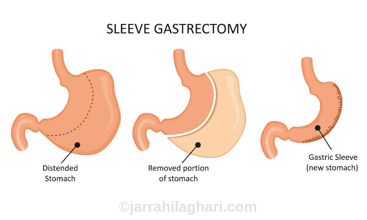 what is a gastric sleeve